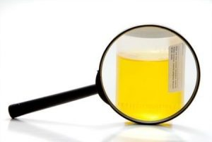 urine routine test