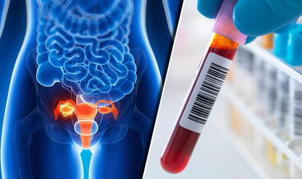 CA 125 Ovarian-cancer
