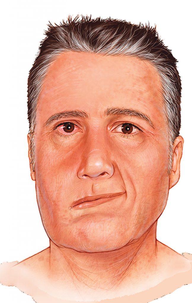 Lyme Disease Facial Palsy