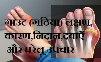 Gout : गाउट (गठिया) लक्षण, कारण, टेस्ट,मैडिसिन और घरेलू उपचार