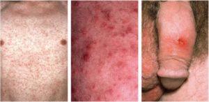 Syphilis symptoms of Primary Stage